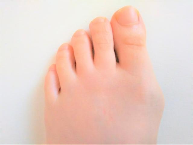 外反母趾で悩む女性の足